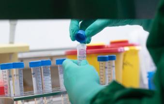 coronavirus  bollettino  covid  ulss 5